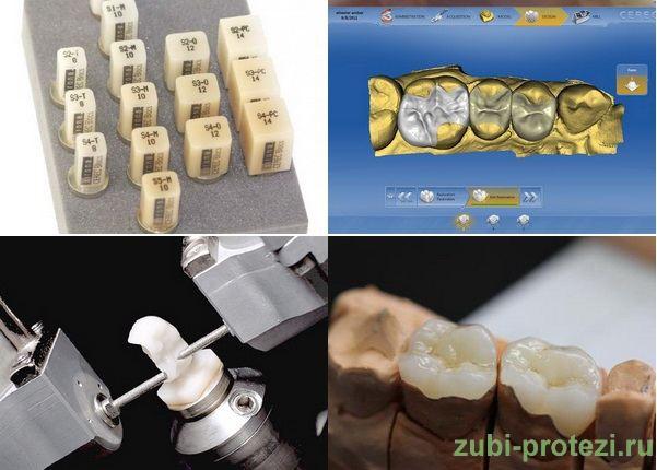 изготовдение зубных вкладок