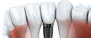 зубной имплант акция