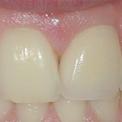 имплантация одного зуба