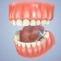 Как устанавливаются зубные коронки