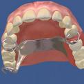 Восстановление зубного ряда бюгельными протезами