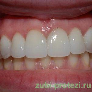 Керамические зубные коронки - фото
