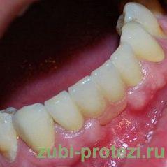 Зубной мост металлокерамика