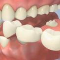 Установка зубного моста