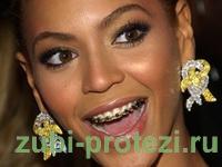 брекеты на Beyonce