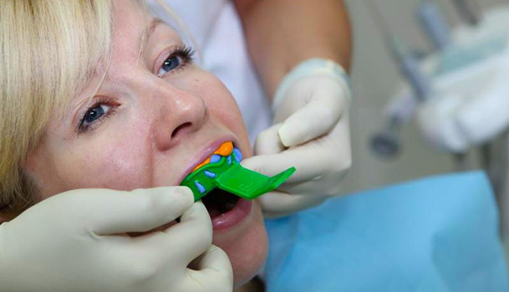 изготовление слепка зубов
