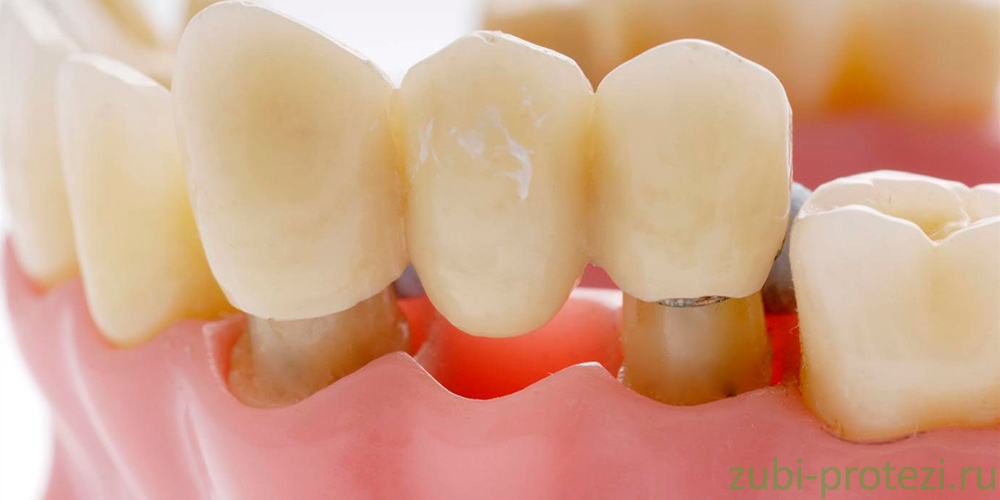 как обрабатывается зуб перед протезированием