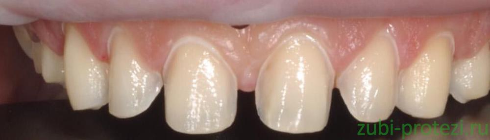 обточенные зубы перед винирами