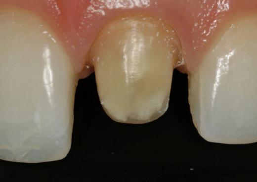 обточка зуба