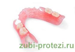 альтернатива бюгельным протезам - протезы из нейлона