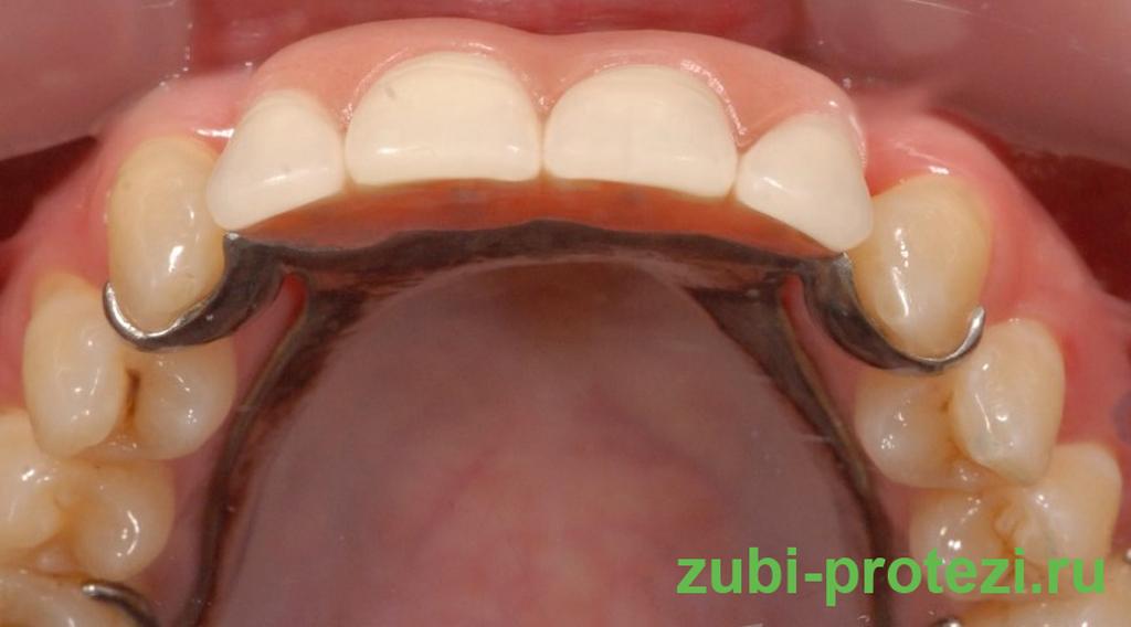 Протезы на зубах
