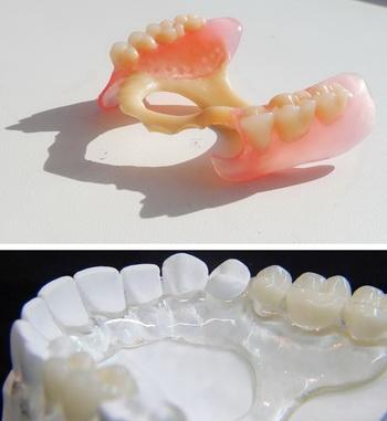 Протезирование зубов цены выборг