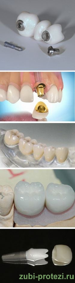 виды зубных коронок на имплантах