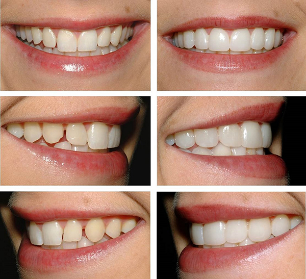 сделать виниры на зубы