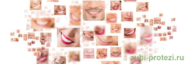установка зубных протезов