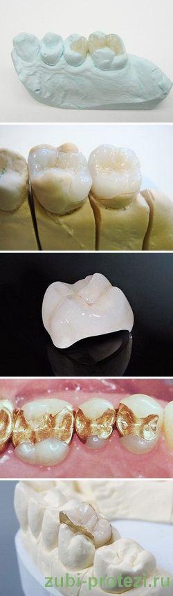 зубные вкладки виды