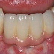 Пример протезирования передних зубов на имплантах