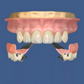 Протезирование верхних зубов на кламмерах