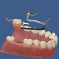 Бюгельные протезы для нижних зубов