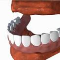 Частично-съемные зубные протезы