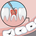 депульпация зуба