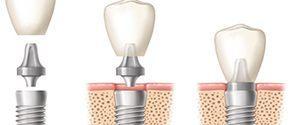 имплантация зуба 25 000р.