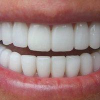 Зубные мосты из оксида циркония - фото примеры