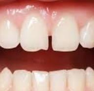 протезы для некрасивых зубов