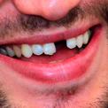 нет зуба