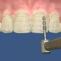 Подготовка зубов для установки виниров