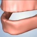 Отсутствие всех зубов - негативные последствия
