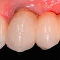 шатается зубной мост