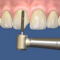 Восстановление сколотого зуба винирами