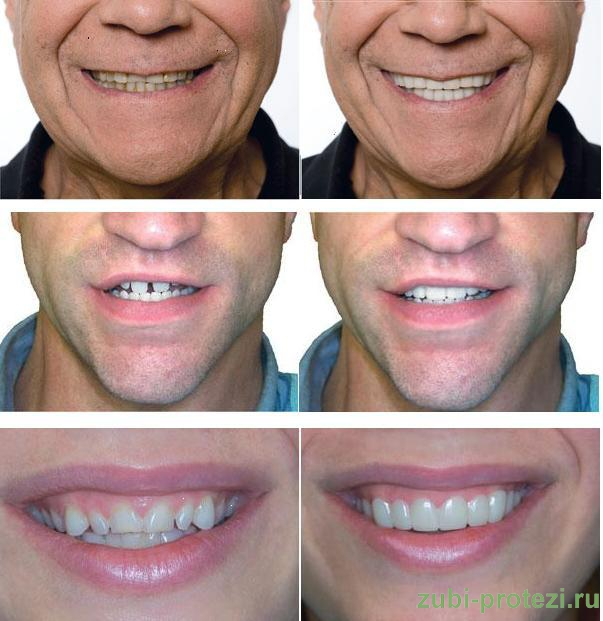 Snap-ON smile фото примеры протезирования до и после