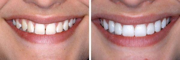 виниры для зубов perfect smile veneers инструкция
