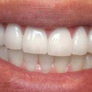 Восстановление эстетики зубов винирами