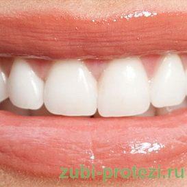 Восстановление зубов винирами: фото примеры