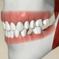 Восстановление боковых зубов