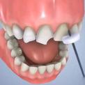 Восстановление передних зубов
